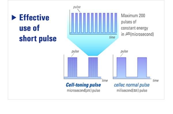 ipl toning pulse- cellec