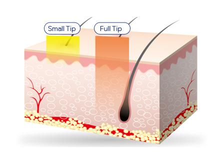 grid Rf tip - intragen