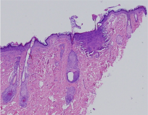 Histology - intracel