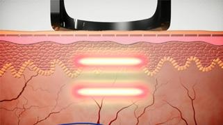 Nd: laser yagPTP-tribeam
