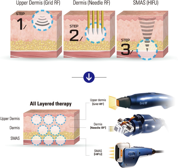 Target skin depth - ultracel
